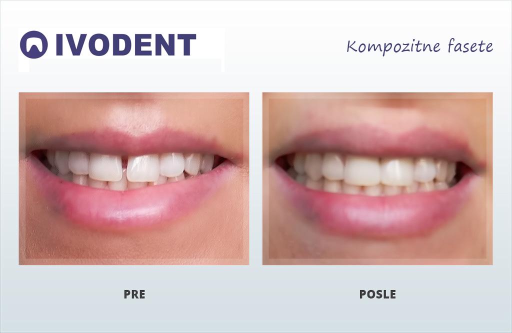 Zubna ordinacija zrenjanin