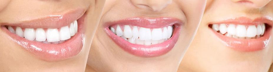 Kako ukloniti bele fleke na zubima